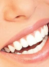 Teeth-Whitening Adelaide