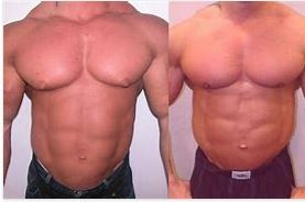 Gynecomastia Treatments - What You Can Do About It